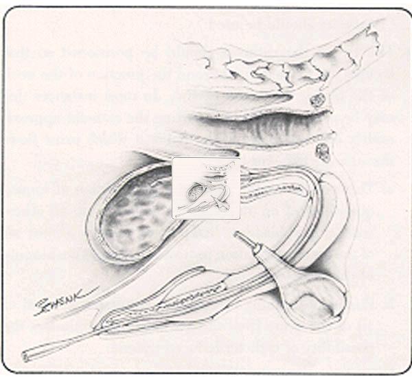 how to put back bartholin catheter
